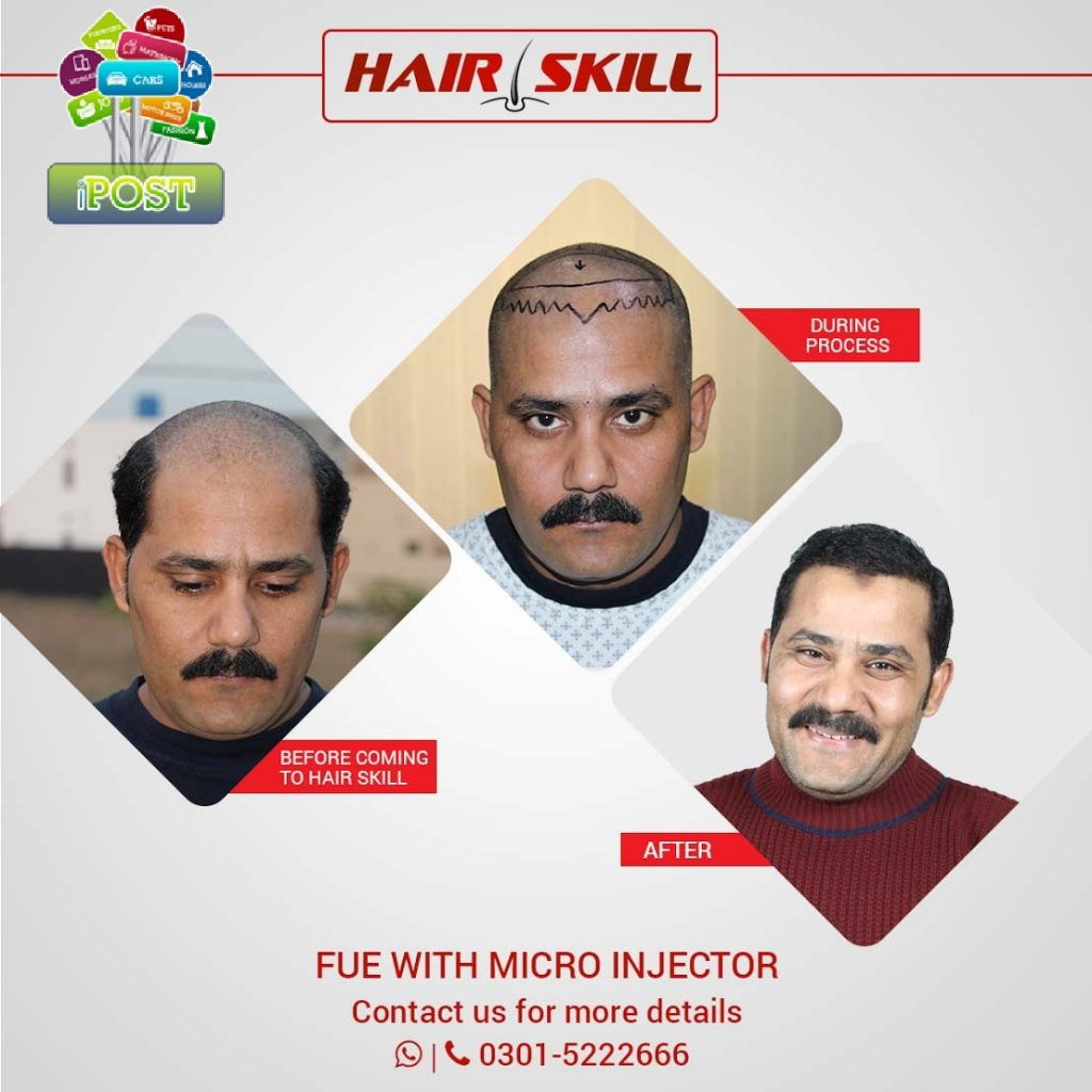 Best Hair Transplant in Lahore
